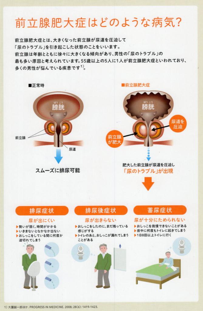 症 前立腺 予防 肥大